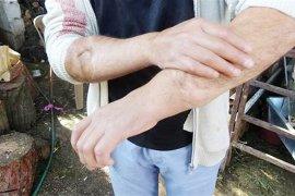 Demirel'in kolları hayat oldu