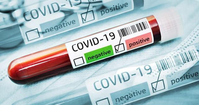 Yatağan'da 3 kişinin koronavirüs testi pozitif çıktı